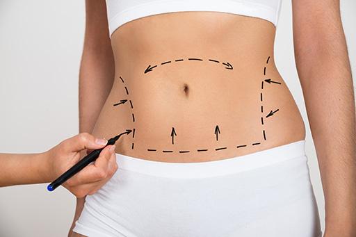 milton-hayashi-lipoabdominoplastia-com-torsoplastia-cirurgia-plastica-birigui-sao paulo