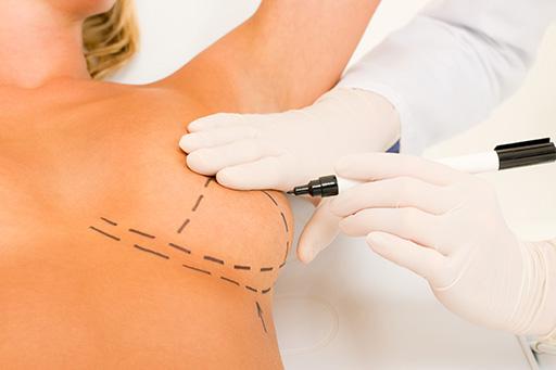 milton-hayashi-mamoplastia-com-protese-cirurgia-plastica-birigui-sao paulo