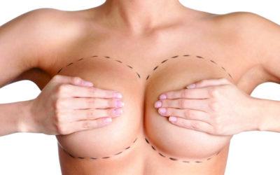 Prótese de Mama: atrás ou na frente do músculo?